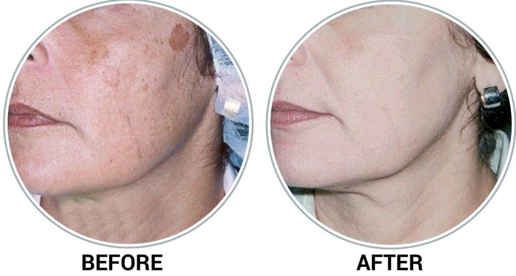 de-pigmentation example