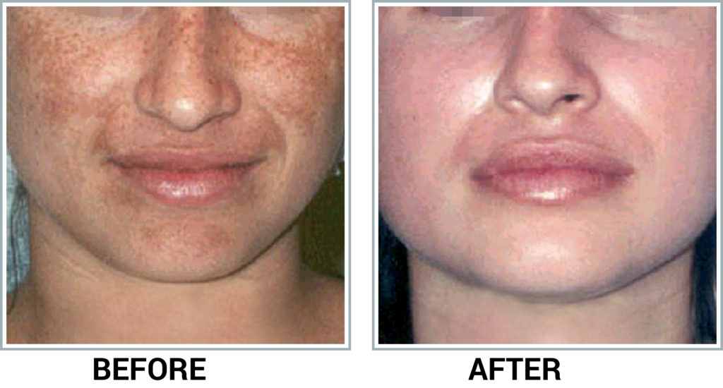 de-pigmentation example2