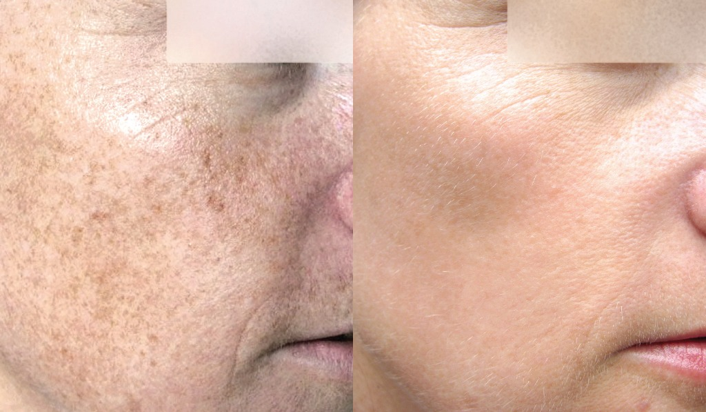 photorejuvenation example