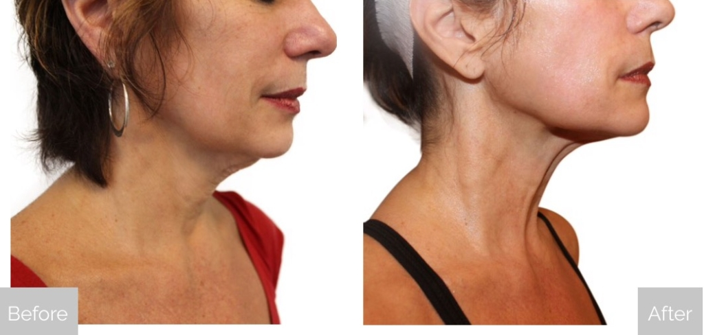web-venus-swan-Before-and-After-Face-Neck-3