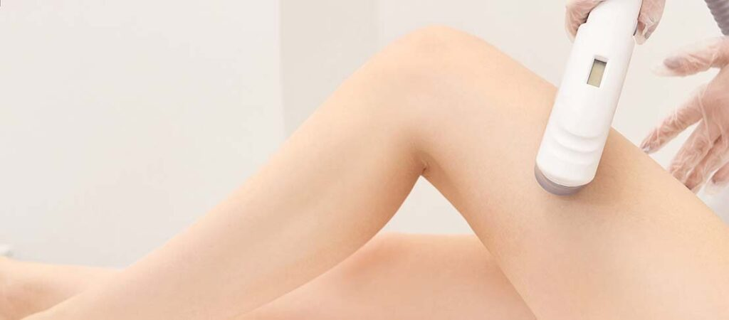 IPL hair removal Brisbane